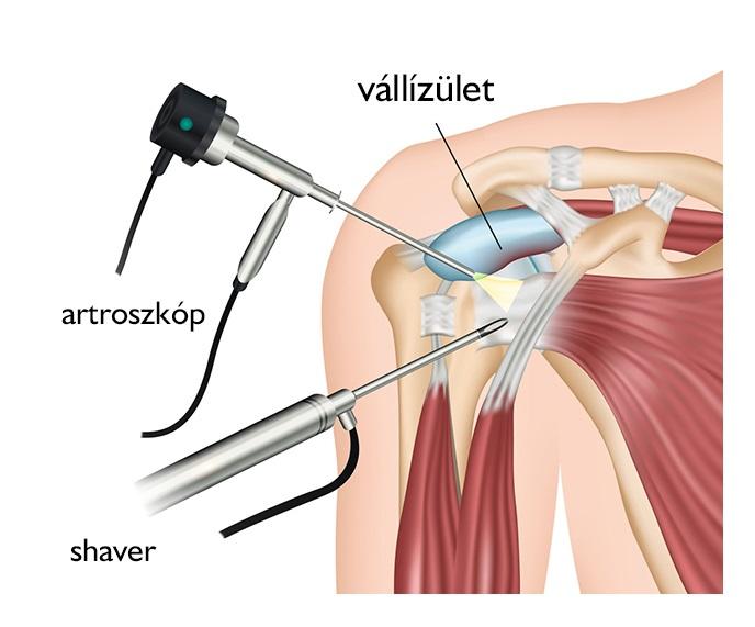 nyaki fájdalom vállízület kezelése)