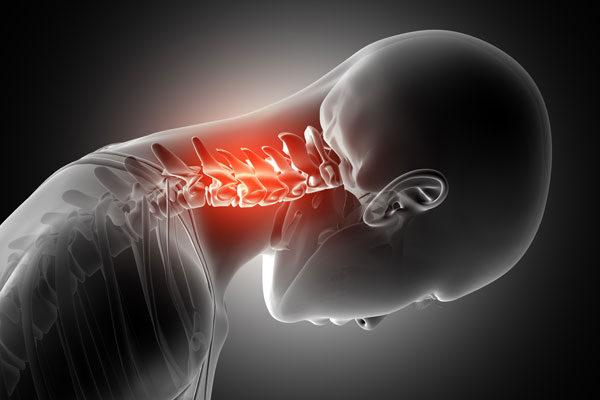 nyaki kenőcs csontritkulás)