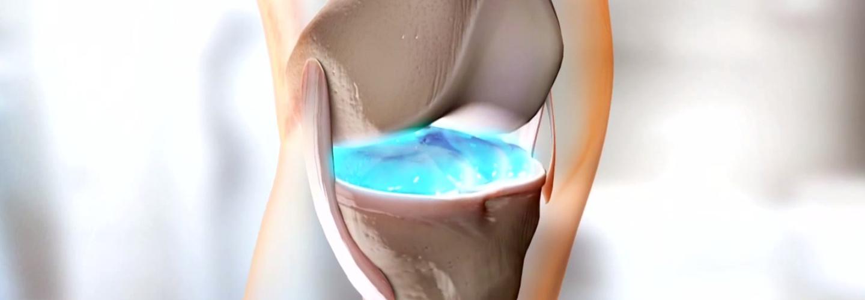 só a térd artrózisának kezelésében az epe használata ízületi fájdalmak esetén