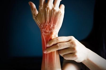 perifériás ízületek osteoarthritis és gerincvelő gyógyszerek)