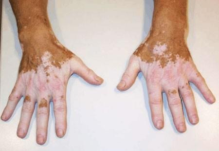 psoriasis artritisz ujjkezelés)