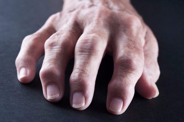 rheumatoid arthritis esetén az ízületeket gyakrabban érinti)