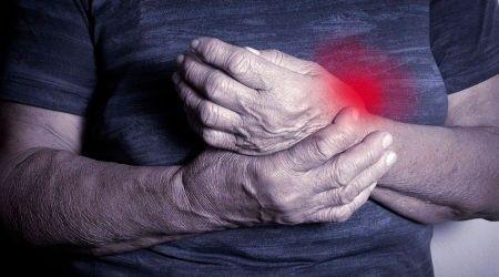 rheumatoid arthritis természetes kezelése