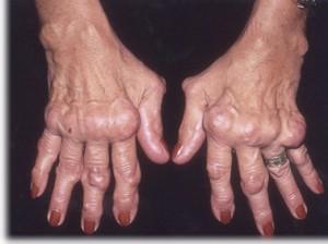 rheumatoid arthritis ízületi elváltozások)