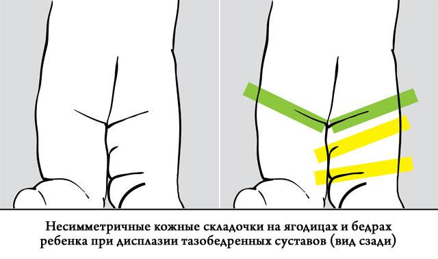 rákattint a csípőízületre és fáj, amikor sétál