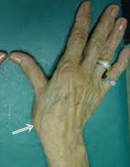 rángatózó fájdalom a hüvelykujj ízületében