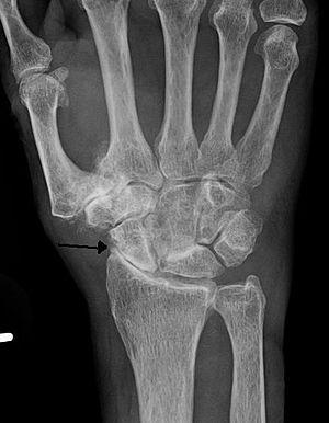 scaphoid scaphoid artrosis gyógyszerek a lábízületek ízületi gyulladásaihoz