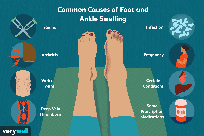 nyaki osteochondrozis kenőcs a láb ízületeinek degeneratív betegsége