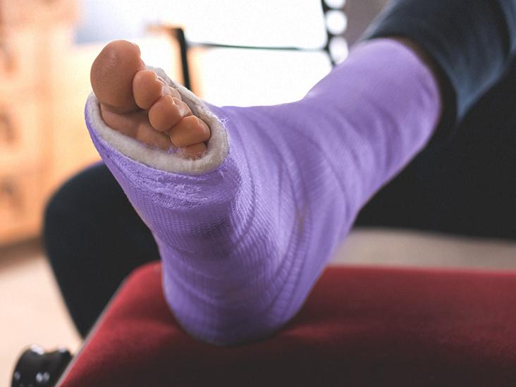 Traumás arthritis a térd