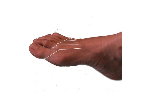 tarsalis-metatarsális ízületi fájdalom)