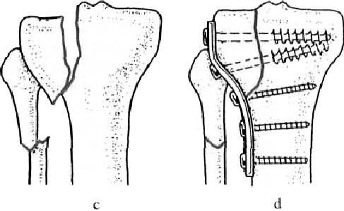 térd ligamentum-törések kezelése