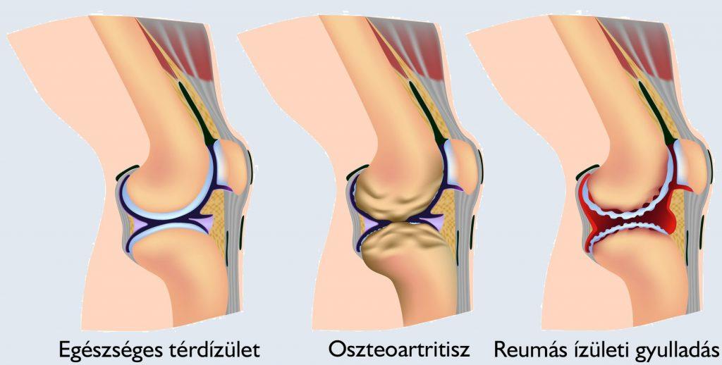 térd térdízületi gyulladás ízületi fájdalom súlyos hasmenés