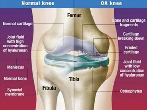 térdízület ödéma artrózissal fáj a váll-ízületek
