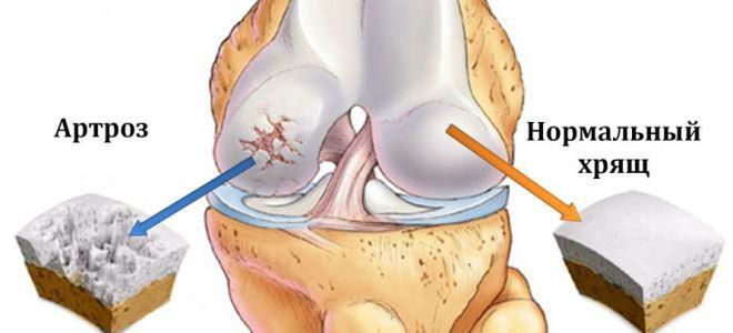 térdízületek ízületi gyulladásának kezelése gonartrózis kezelése)