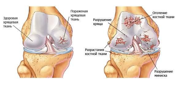 az ujjak ízületeinek sebeinek kezelése