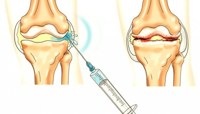 térdízületi kezelés ii. fokozatú szinovitisz gonartrózisa)