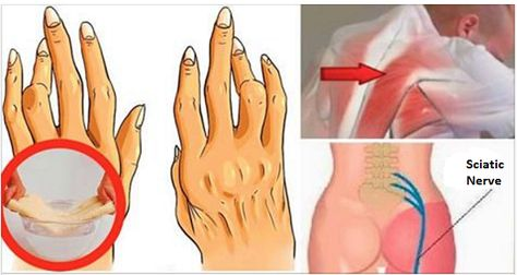 ízületi fájdalom a fertőzés után fájdalom nélkül recseg az ujjak ízületeiben