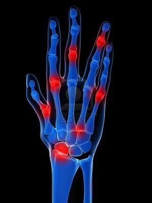 térdízületi kezelési rendszer a térd artrózisának kezelési algoritmusa
