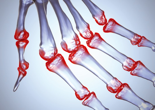 a jobb csípőízület fáj, mint hogy kezelje a hüvelykujj artrózisának kezelése