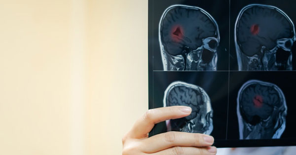 ízületi fájdalom ischaemiás stroke után.