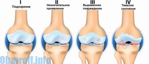 ízületi fájdalom kialakulásának mechanizmusa)