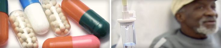 kenőcsök térdkötések repedésének kezelésére kondroitin és glükózamin túladagolása