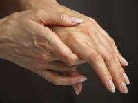 az ízület ligamentumainak károsodása, amely a túlfeszítéshez kapcsolódik