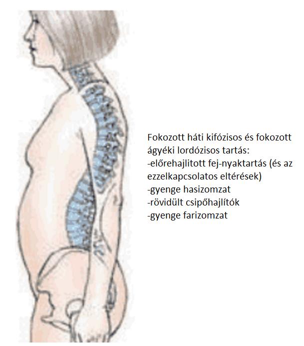 feljegyzés osteoarthritises beteg számára - seovizsgalat.hu