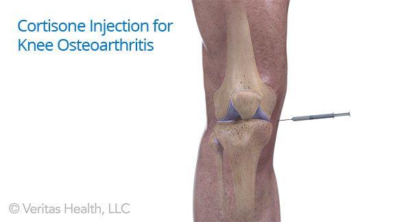 injekciók ízületi fájdalomra a)