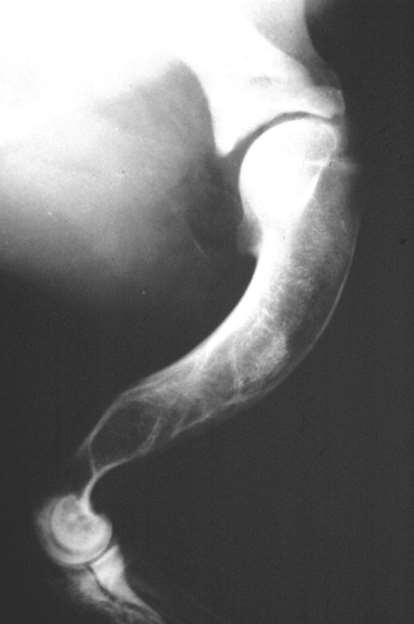 vállízület kezelése osteochondrosis)