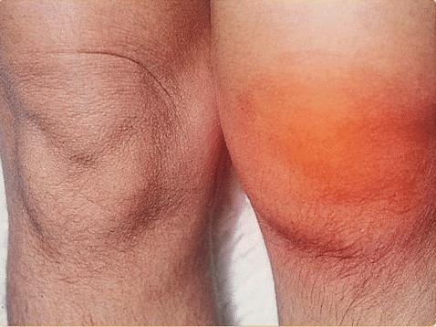 reumatikus fájdalom tünetei