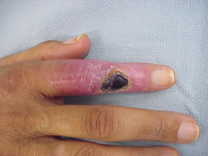 a kézízületek fájdalmának oka - kezelés ízületi fájdalom őszi súlyosbodása