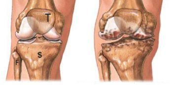 térdízület és sarok artrózisa)