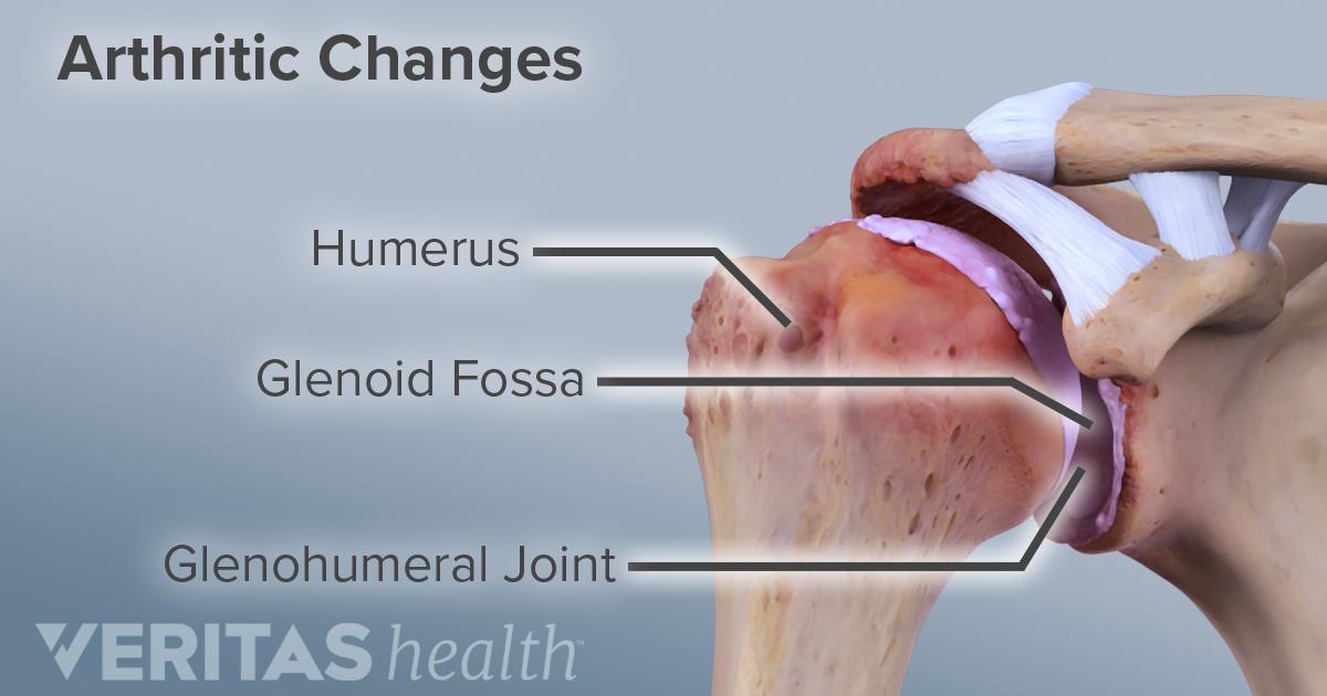 osteoarthritis arthrosis osteoarthrosis arthrosis kezelése