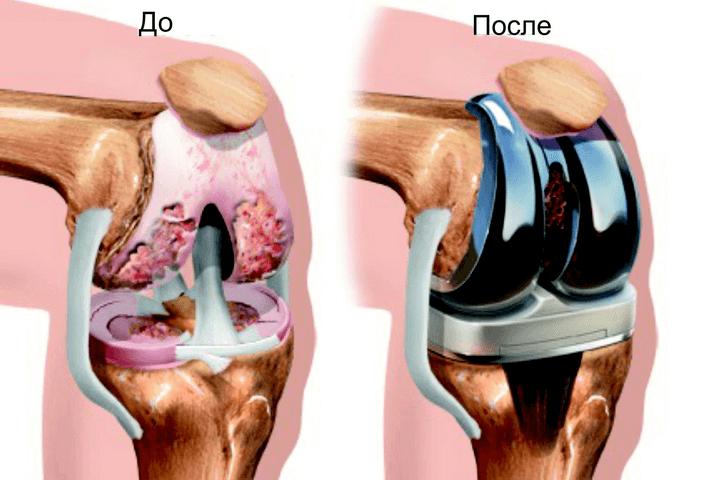 Csuklás az ízületekben - okok és kezelés