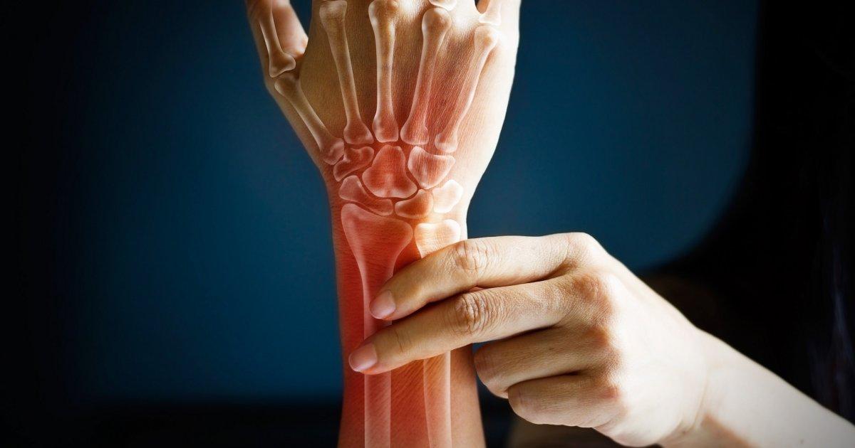 csuklóízület súlyos fájdalma krém az ízületi fájdalmak számára
