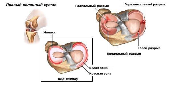 hogyan kezeljük a térd keresztező ligamentuma károsodását)
