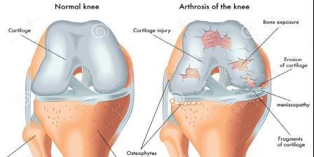 a bal láb térdfájdalma