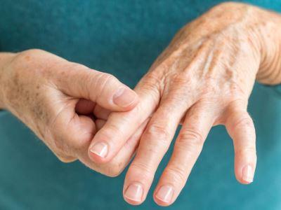 a kéz ízületgyulladása tünetek