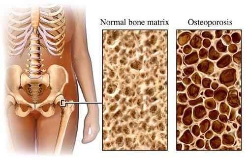 csontritkulás kezelés don gyógyszer