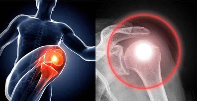artrózis tünetei)