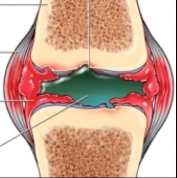 könyökízület folyadék a bőr alatt, hogyan kell kezelni térdcsongyulladás