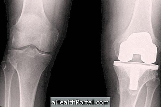 hogyan lehet azonosítani a térd artrózisát
