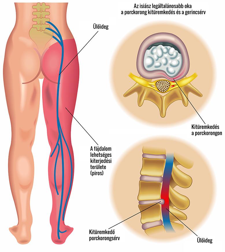 az egyik láb csípőízületének fájdalmainak okai)
