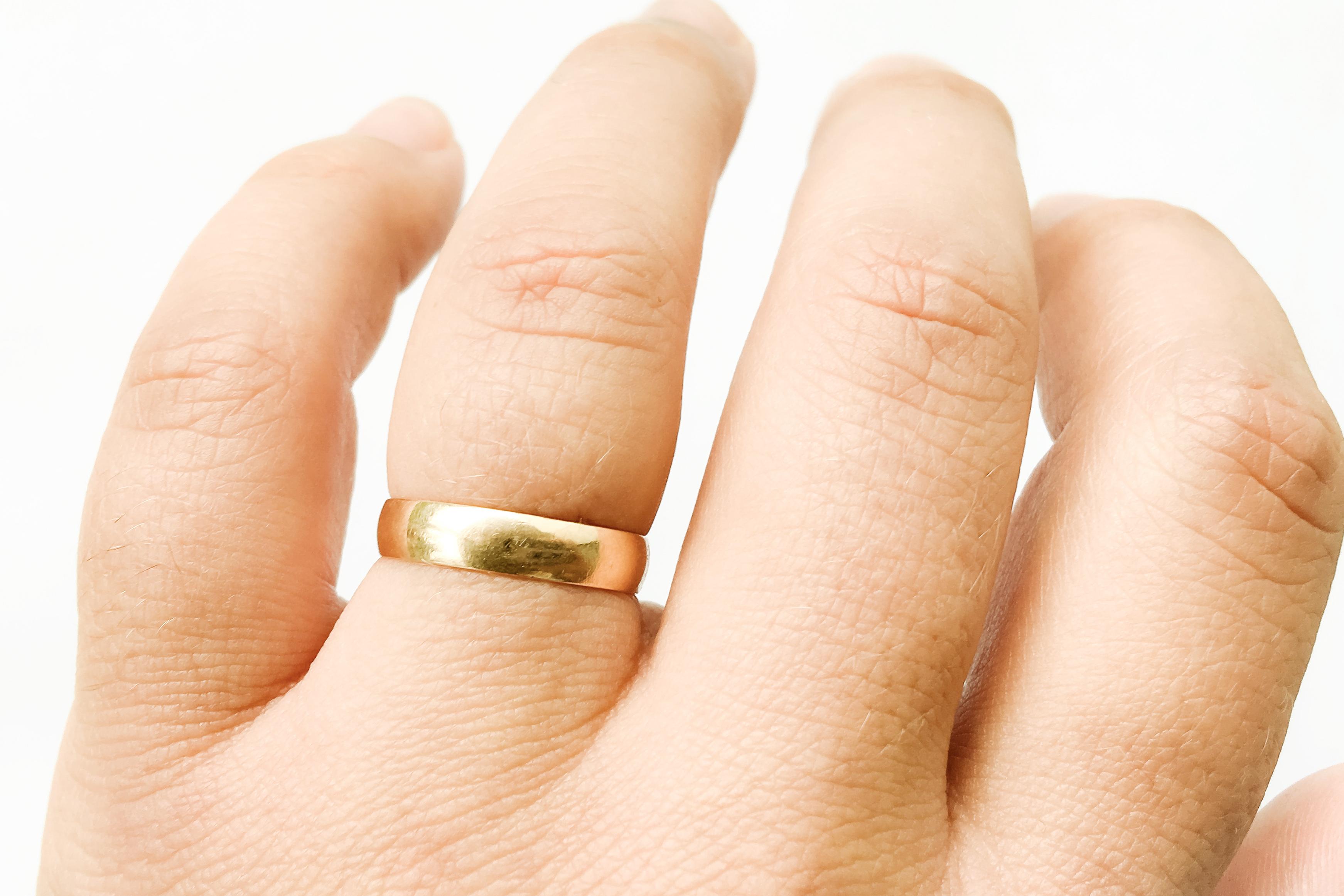 Megduzzadt ujjak: ezek lehetnek az okai