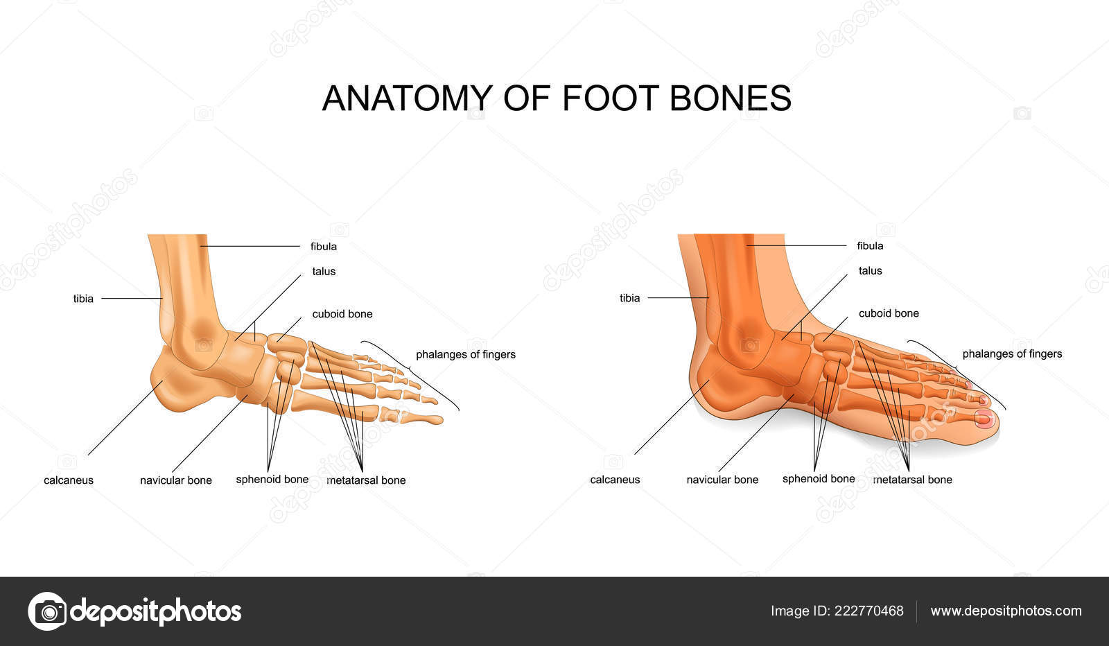 metatarsalis arthritis kezelése