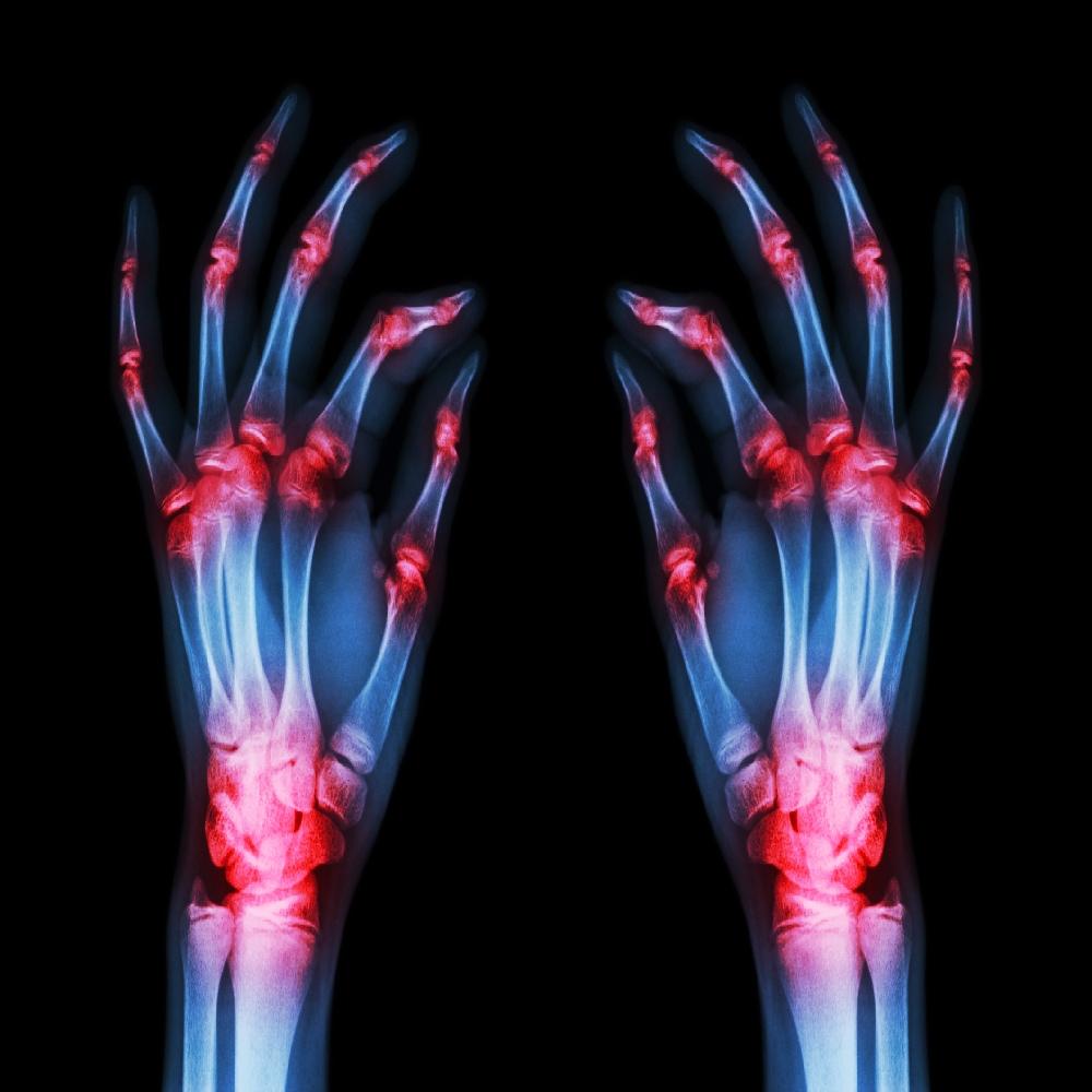 az ízületek gennyes artrózisa