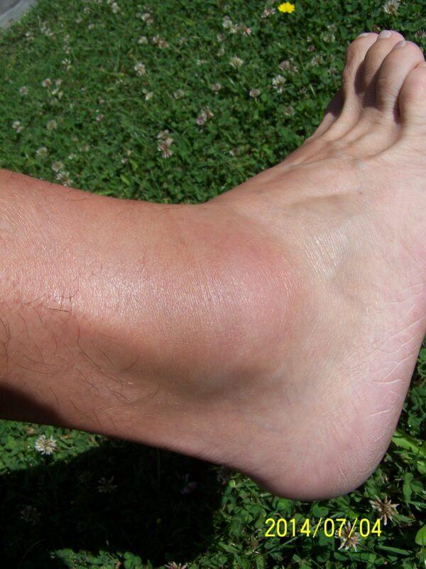 a boka és a lábak duzzanata)
