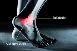 a láb boka fájdalma