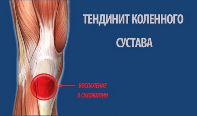 A térdízület ragasztásainak részleges törése. A térd artrózisának fájdalmainak sémája